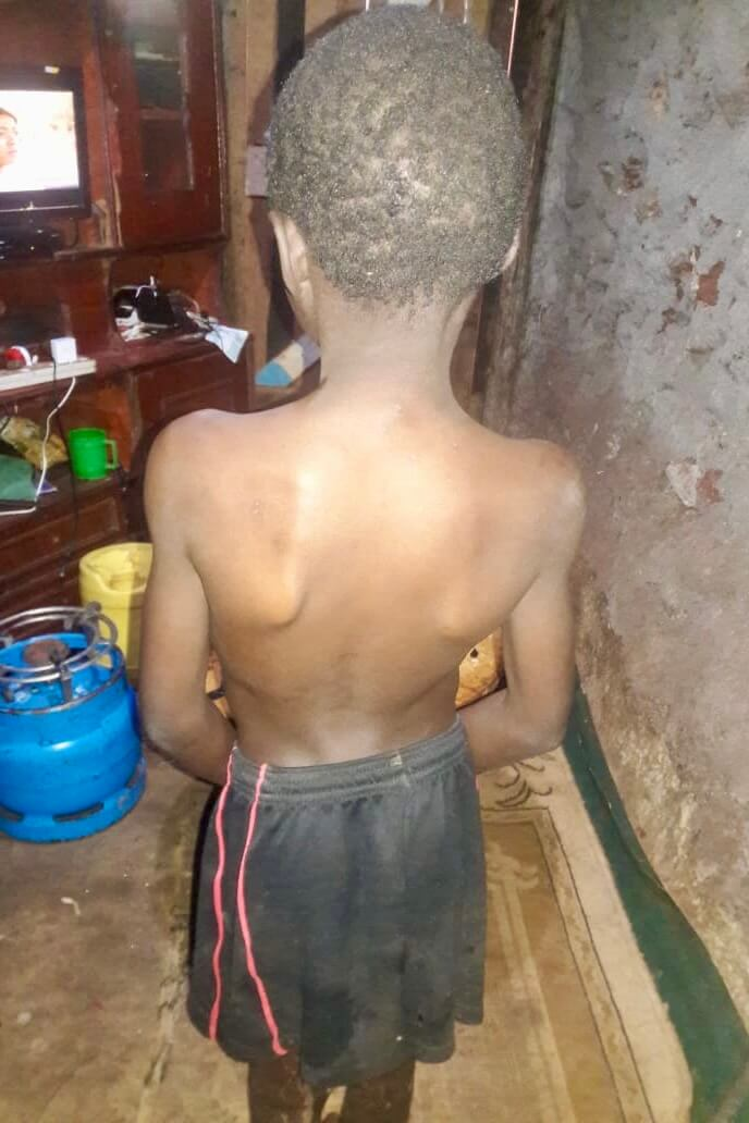 Ibrahim's back, showing a curvature